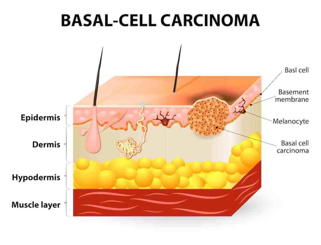 anatomie basaalcelcarcinoom, anatomie huidkanker, huidlagen, huid, huidkanker herkennen, diepte huidkanker in huidlagen