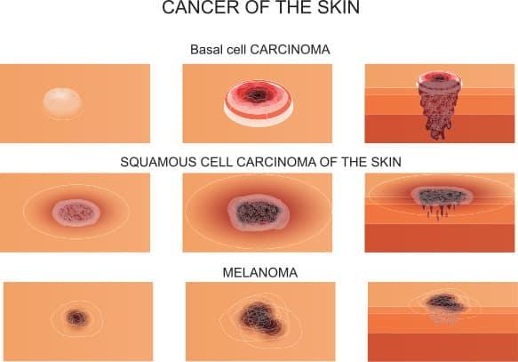 huidkanker, cancer of the skin, skincancer, plaveiselcelcarcinoom, basaalcelcarcinoom, melanoom, melanoma, SCC, BCC, PCC, huidkanker herkennen