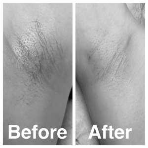 Best hair removal in Houston, Texas Danita Q. Berry