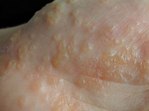 Eczema Causes, Symptoms and Treatment – with Pictures