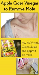 How to Use Apple Cider Vinegar for Mole Removal – 7 DIY Methods
