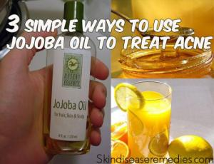 jojoba-oil-for-acne