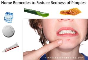 how to reduce redness of pimples