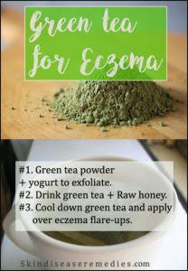 Green Tea for Eczema – 3 Excellent Recipes