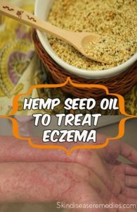 hemp seed oil for eczema