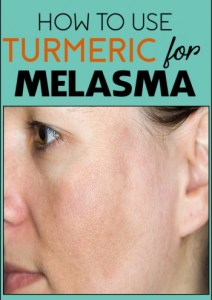 How to Use Turmeric for Melasma – 7 DIY Ways (No.3 is Best)