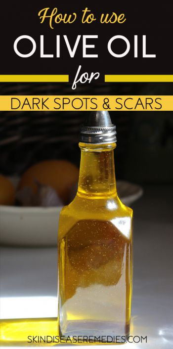 olive oil for dark spots