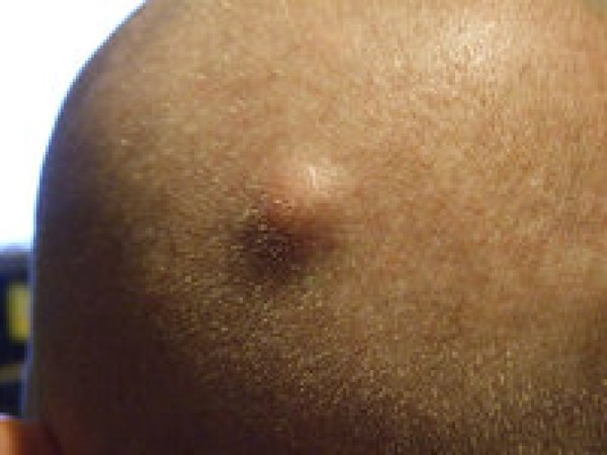 Cysts and nodules acne type.