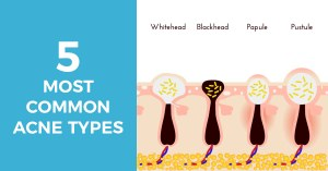 most common acne types