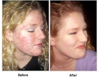 Acnefree before-after