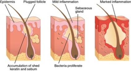 What causes adult acne?
