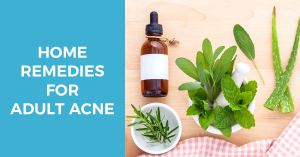home remedies for adult acne treatment