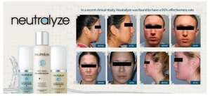 Neutralyze acne solution