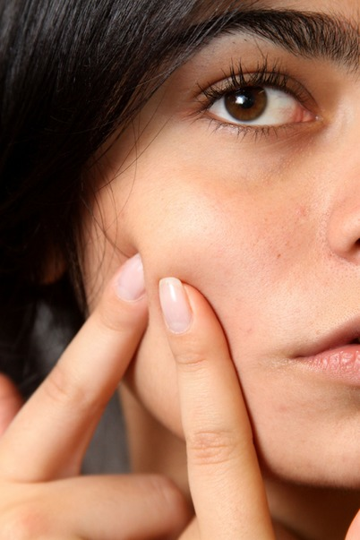 The best adult acne treatment