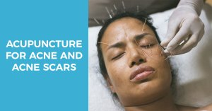 Acupuncture treatment for acne and acne scars
