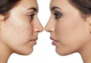 Tretinoin for Acne on Face