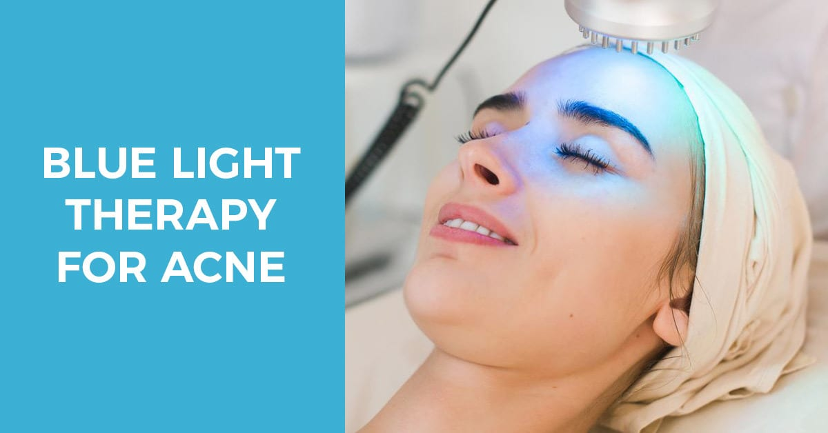 Using blue light therapy for acne problems