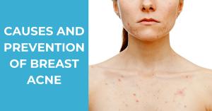 Breast Acne