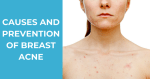 Breast Acne