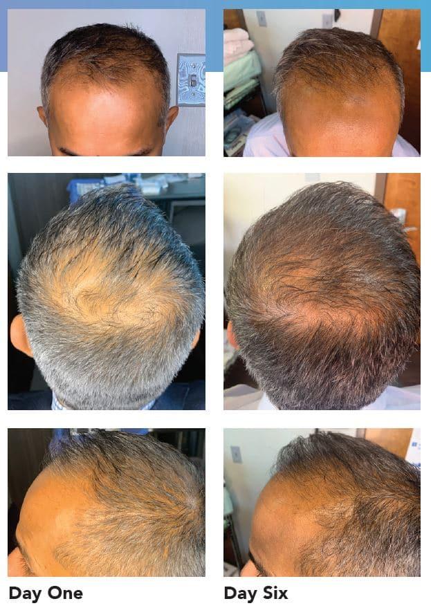 exosome hair restoration