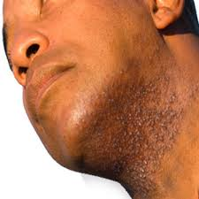 Razor Bumps on the Neck
