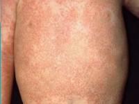 Blau Syndrome Symptoms