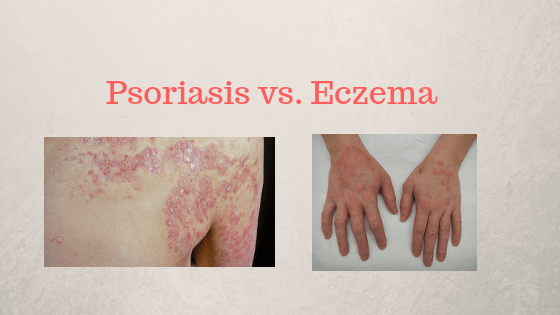 Psoriasis vs. Eczema