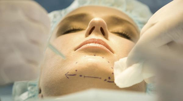 Chin liposuction 2