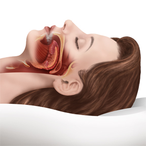 sleep apnea illustration 2