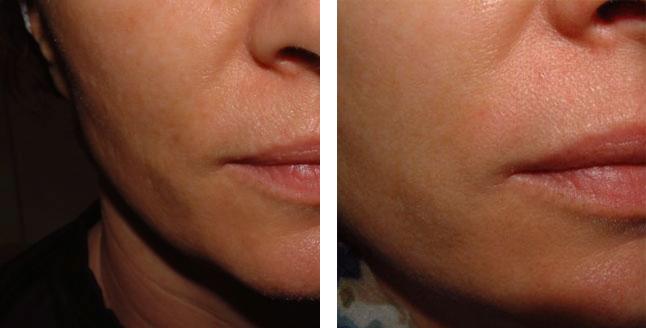 Sky Blue- Facial Rejuvination Procedures