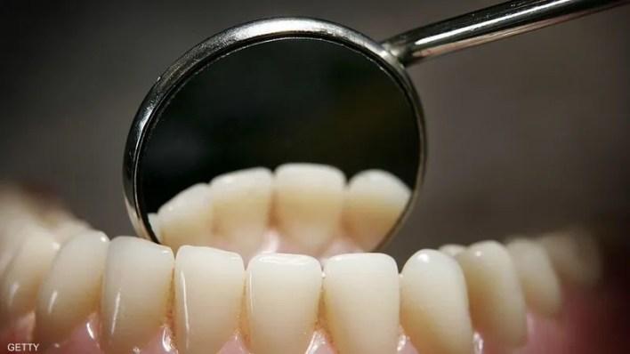 مينا الأسنان لا يستطيع إصلاح نفسه بنفسه