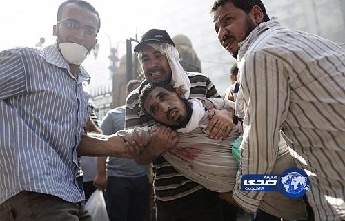 """""""الصحة المصرية"""" 173 قتيلا منذ الجمعة في عموم البلاد"""