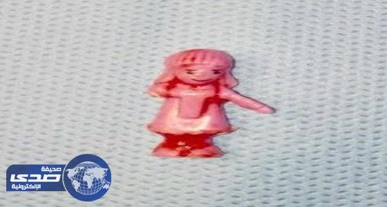 إنقاذ حياة طفل ابتلع لعبة بلاستيكية بمستشفى الملك خالد