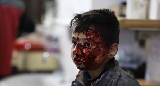 صورة مؤثرة لطفل سوري جريح في الغوطة الشرقية