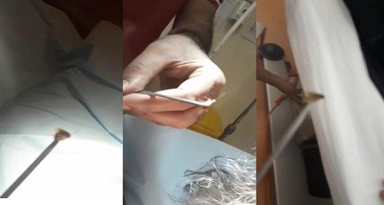 """بالفيديو.. طوارئ """" أضم العام """" تنجح في استخراج """" حشرة """" من أذن طفلة"""