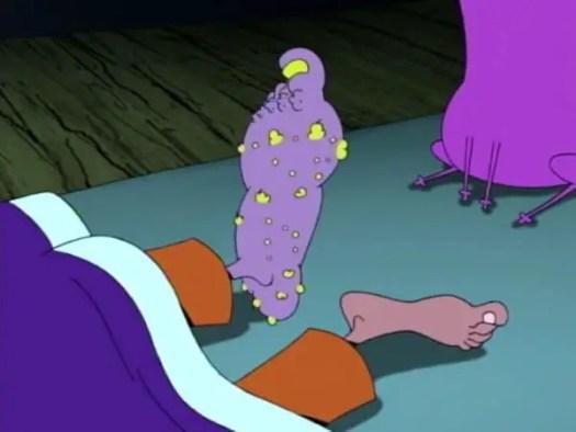 festering-foot