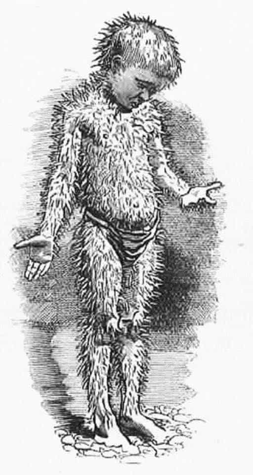 Edward Linley Sambourne, 'I should like to cuddle you; but I cannot, you are so horny and prickly Charles Kingsley, The Water-Babies A Fairy Tale for a Land-Baby 1862