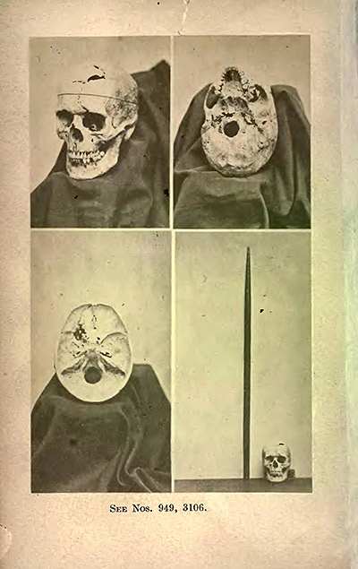 Frontispiece, showing multiple views of Gage's exhumed skull, and tamping iron, 1870.