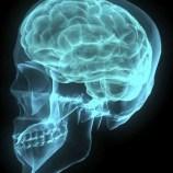 brain 422