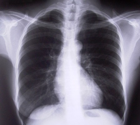 lungs chest xray