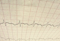 ekg heart and sleep