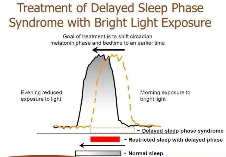 Treatment of delayed sleep phase