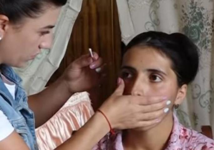 Наместо солзи – КРИСТАЛИ: Лекарите зачудени, не знаат што е причината