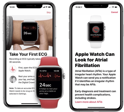 ECG App on Apple Watch series 4