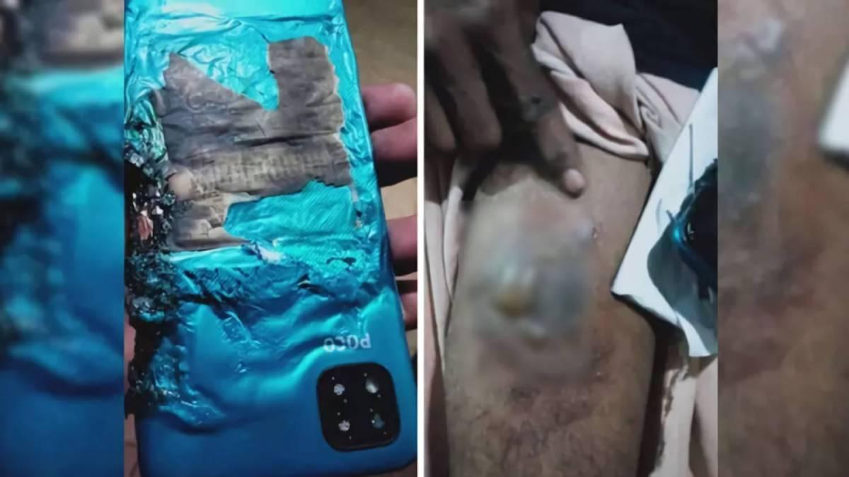 Xiaomi Poco C3 Smartphone Exploded Kerala
