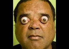 1.the eyepopping man- claudio pinto