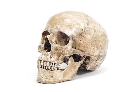 Human-Skull Fragments