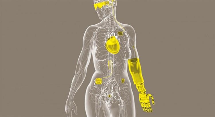 Implantes tecnológicos en el cuerpo de una persona