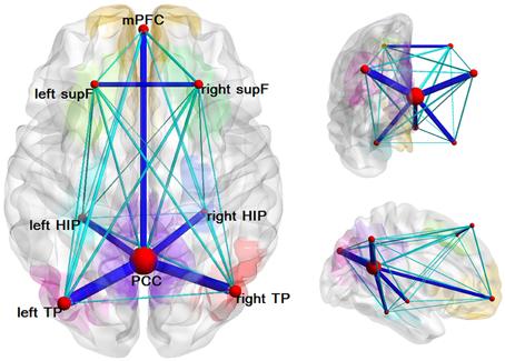 Esta es una representación de la conectividad funcional cuando no estamos concentrados, formada por la corteza prefrontal medial, corteza cingulada posterior y lóbulo parietal inferior, entre otros.