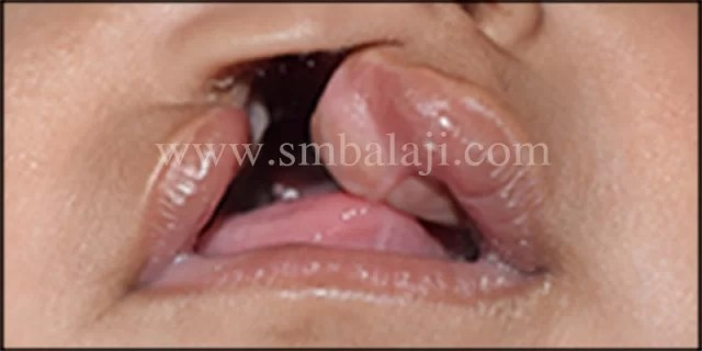 Unilateral cleft lip and palate defect in 3 months old baby girl